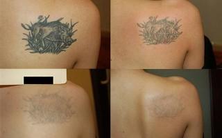 Сколько стоит свести татуировку лазером?